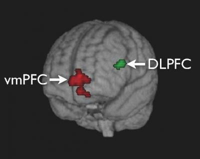 脳磁気刺激装置の実際