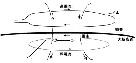 脳磁気刺激装置の原理02